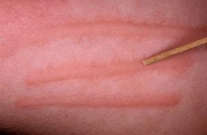 След от укуса