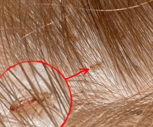 вши любят чистые или грязные волосы