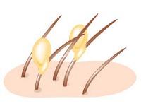 Гниды в волосах