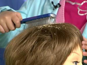 паразиты в волосах человека