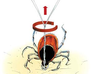 борьба с паразитами в организме человека отзывы